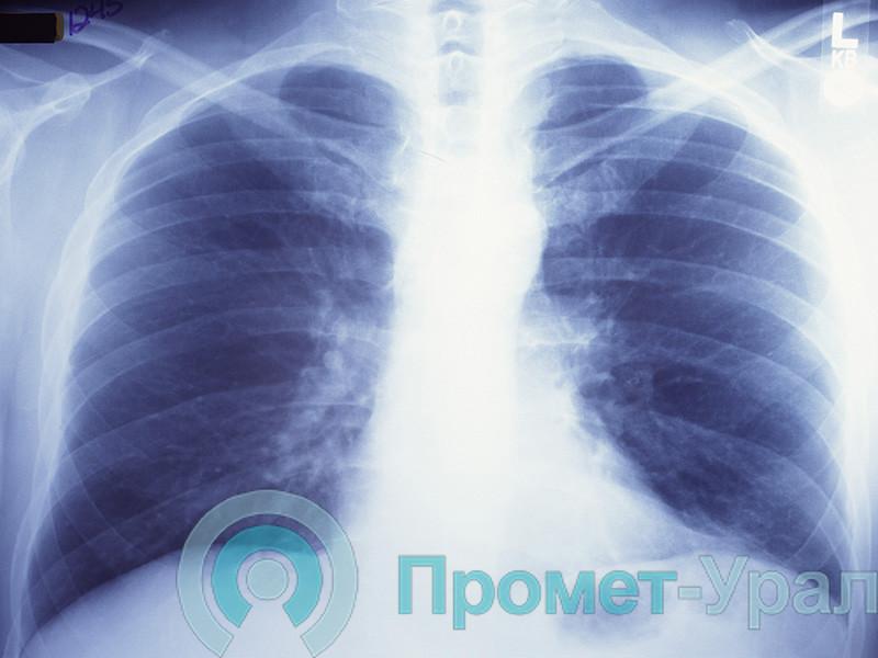 Сможет ли флюорография или рентген показать коронавирус?